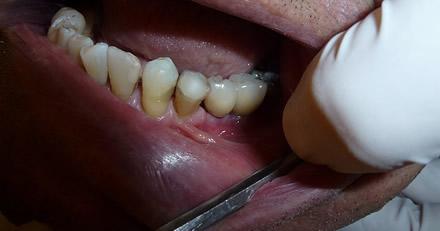 Parodontose bzw. Parodontitis festgestellt